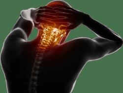 Indemnización por latigazo cervical